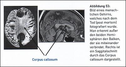 Gehirn-Hemissphären